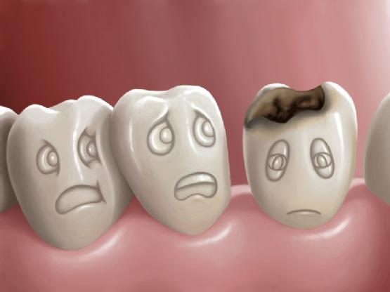 Phòng chống sâu răng cho trẻ em như thế nào cho hiệu quả?
